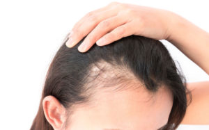 Salon-M Hair Salon & Trichology Clinic In Wallasey, The Wirral Offers Treatments For Coronavirus Hair Loss