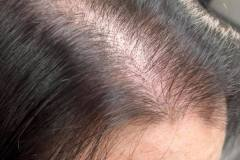Hair Loss During Cancer Treatment, The Wirral